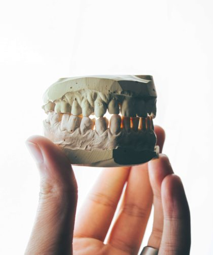 Ranking implantów zębowych - o tym warto wiedzieć!